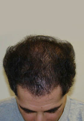 young man with hair loss