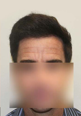 Hair Transplant Before After Photos - One Procedures