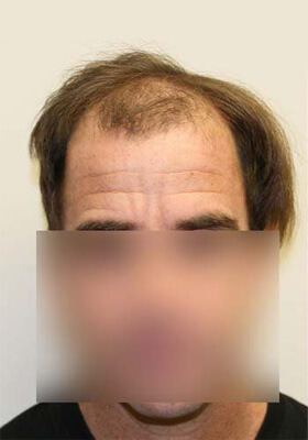 Hair implants before