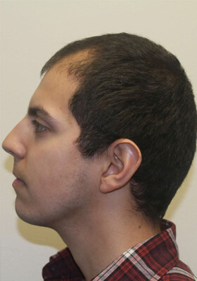 Hair Transplant Patient Photos