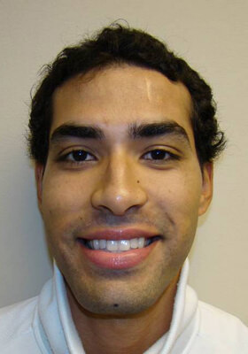 Dr Brett Bolton Patient Photos  - Two Procedures