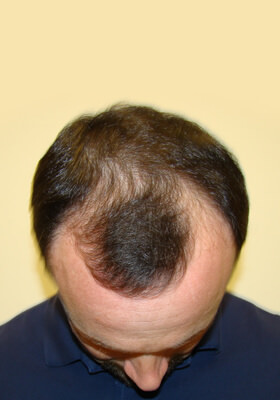 hair transplant photos