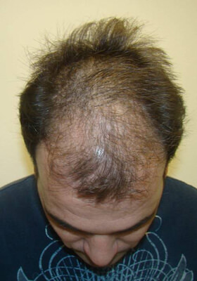 hair implants after