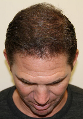 Hair Transplant in florida