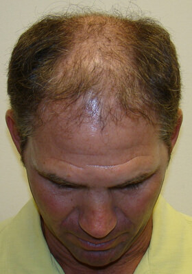 hair transplant correction