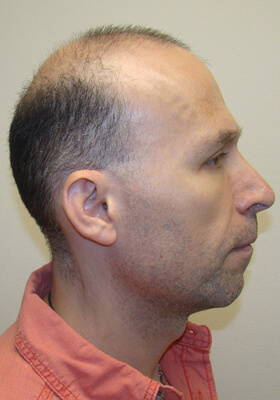 Dr Brett Bolton Patient Testimonial Photos - Two Procedures