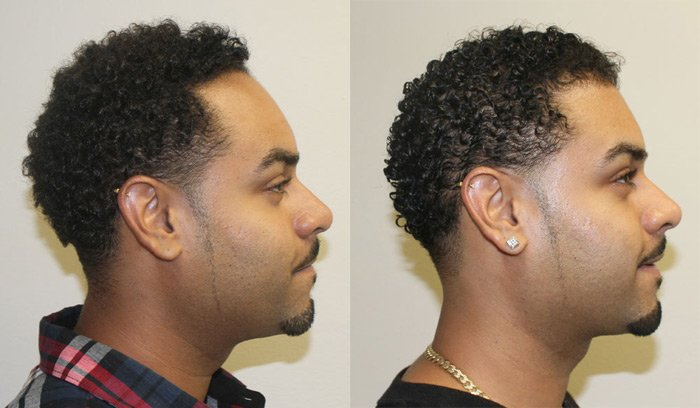 how to grow your hairline back