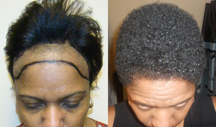 African American Hair Loss Causes | Short Hairstyle 2013