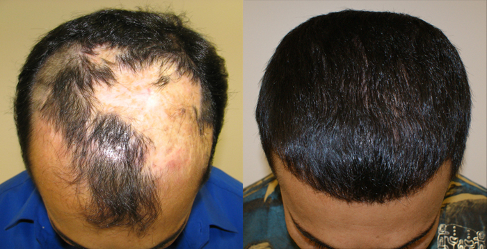 Can you have a hair transplant without propecia