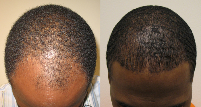 African American Hair Transplant Patients Page Dr Brett Bolton