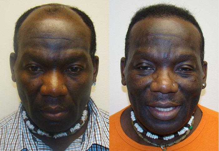 Hair Transplant On Black Males 3