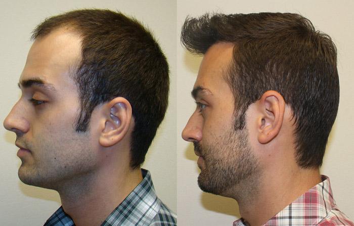 HAIR TRANSPLANT | Hair Transplants | Hair Loss | Hair Surgery