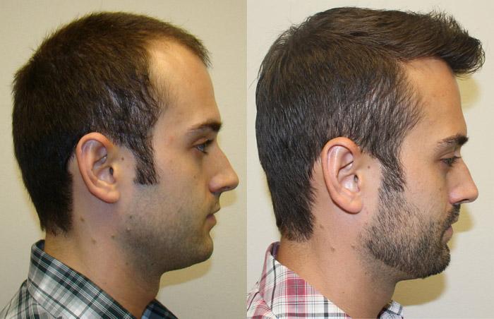 Great Hair Transplants, Hair Restoration Clinic