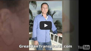 Dr. Brett Bolton best hair transplant results ever