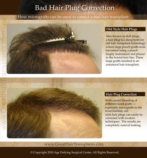bad hair plugs