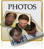Hair Transplants Before After Photos