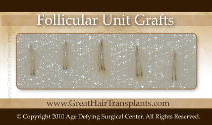follicular unit grafts