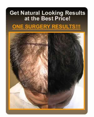 Дефицит цинка и выпадение волос