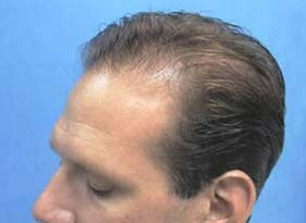Hair Transpant Patient Photos