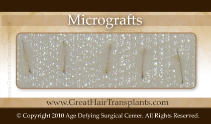 Micrografts or single hair grafts