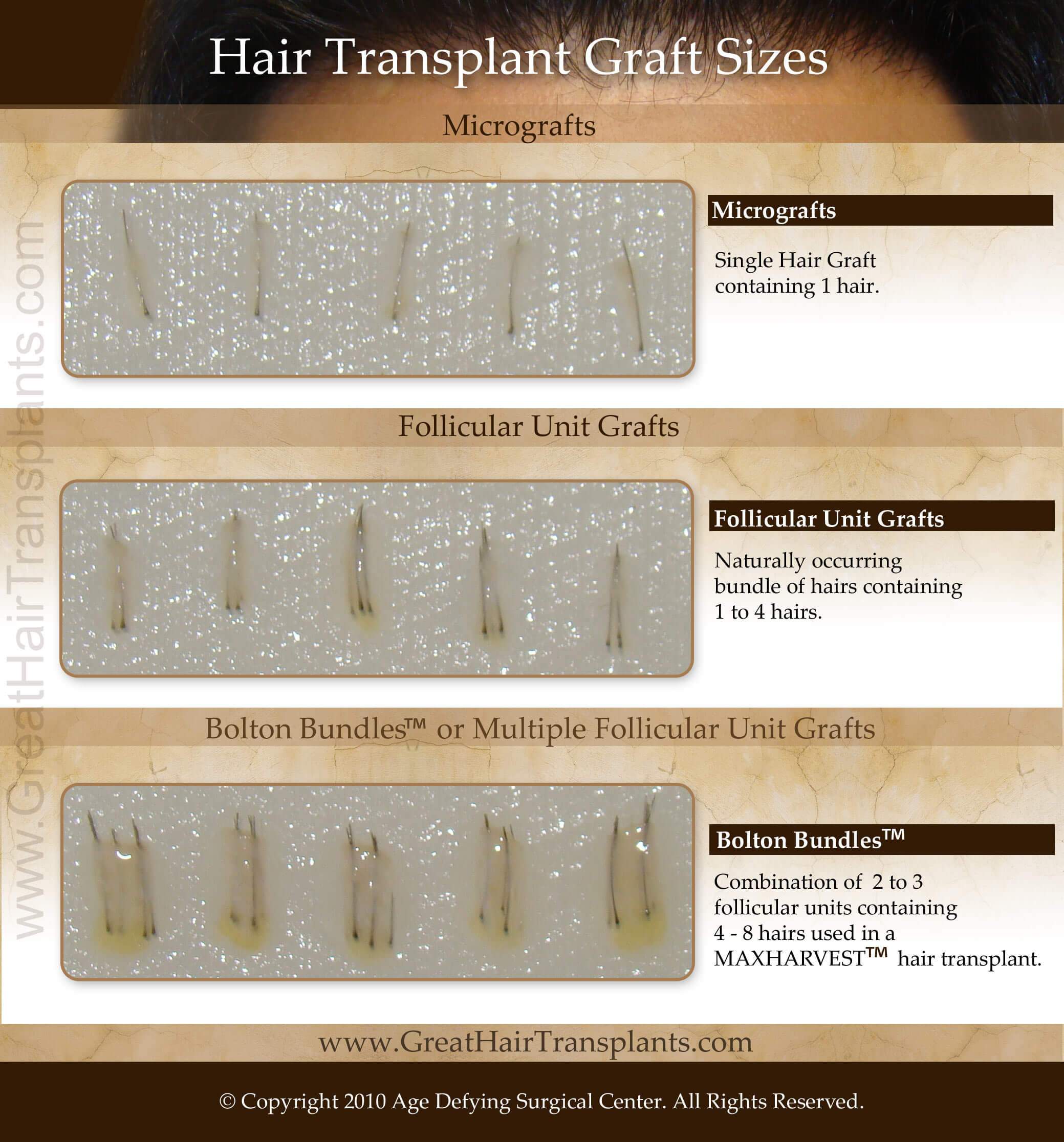hair graft sizes