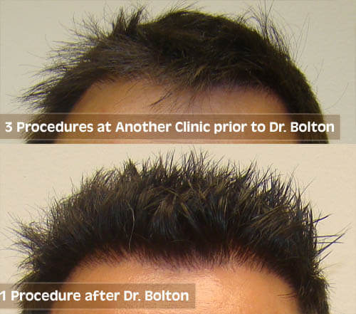 Dr. Bolton compared to national hair transplant clinic