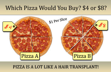hair transplant is like a pizza