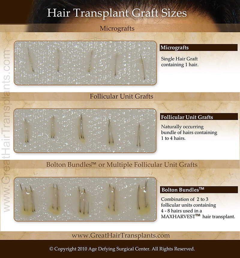 Hair Transplant Graft Sizes