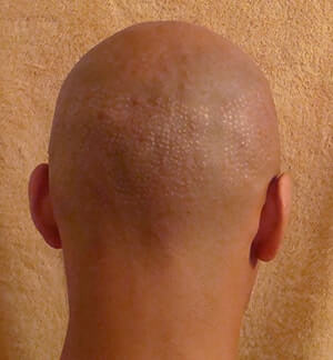 Hair Transplant Fue Scar Maxharvest Correction
