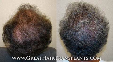 Hair Implants Valdosta GeorgiaGA In Lowndes County