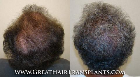 Hair Implants Valdosta GeorgiaGA In Lowndes County