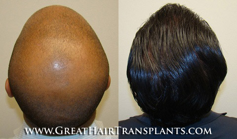 Hair Transplant Cost Hinesville GeorgiaGA In Liberty County